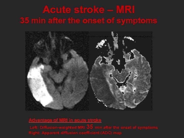 Acute stroke – MRI 35 min after the onset of symptoms http: //emedicine. medscape.