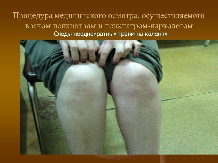 Процедура медицинского осмотра, осуществляемого врачом психиатром и психиатром-наркологом Следы неоднократных травм на коленях