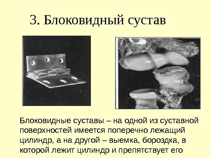 блоковидный суставов