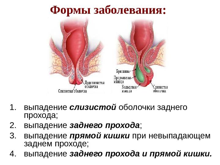 vospalenie-slizistoy-posle-seksa