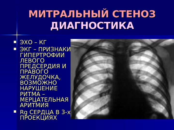 Как лечить гипертрофию сердца правого предсердия