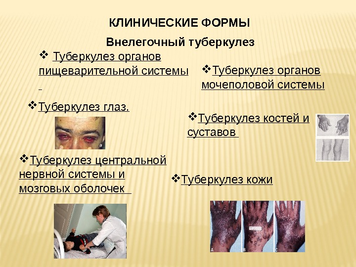 внелегочные формы туберкулезакостей и суставов