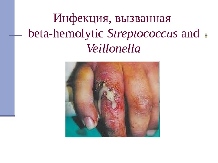 Инфекция, вызванная beta-hemolytic Streptococcus and Veillonella