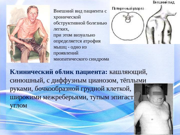 Уход за больным при хроническом бронхите