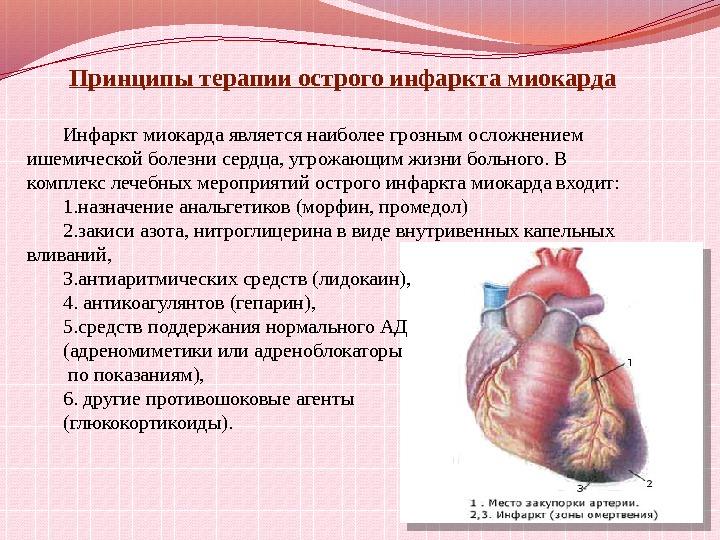 Для острого сердечного приступа характерно