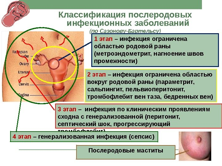 эндометрит как осложнение после родов любят кончать