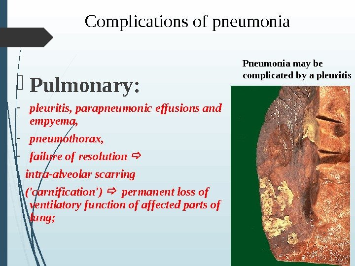Complications of pneumonia Pulmonary: - pleuritis, parapneumonic effusions and empyema, - pneumothorax, - f ailure of