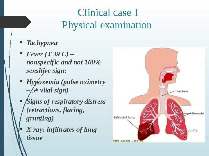 Clinical case 1 Physical examination  Tachypnea Fever (T 39 C) – nonspecific and not 100