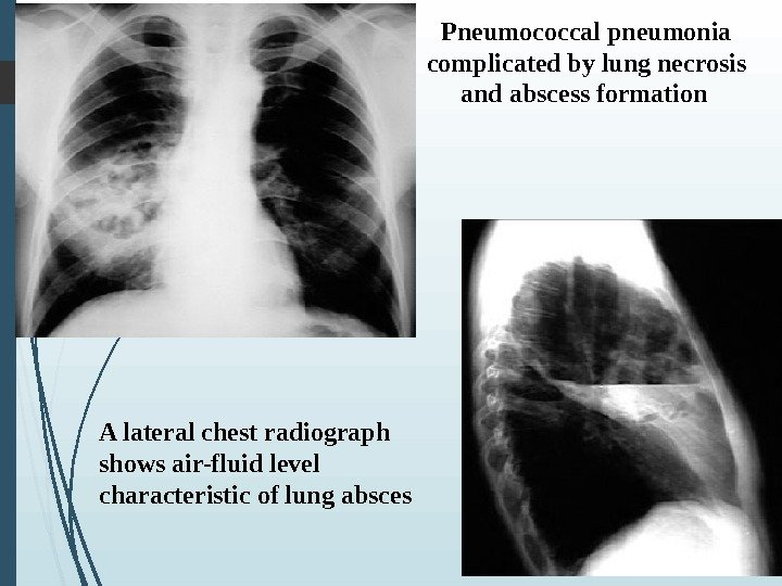 Pneumococcal pneumonia complicated by lung necrosis and abscess formation      A lateral