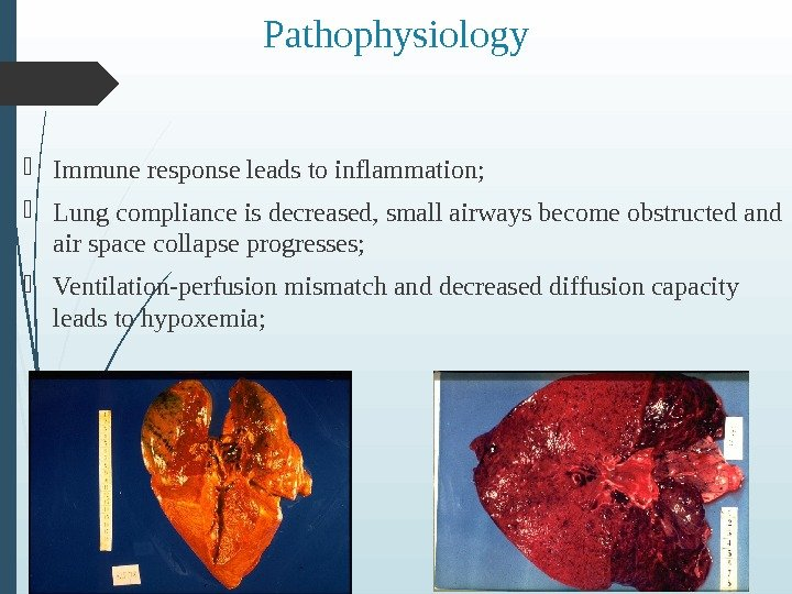 Pathophysiology Immune response leads to inflammation;  Lung compliance is decreased, small airways become obstructed and