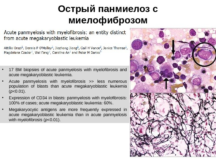 Острый панмиелоз с миелофиброзом • 17 BM biopsies of acute panmyelosis with myelofibrosis and acute megakaryoblastic