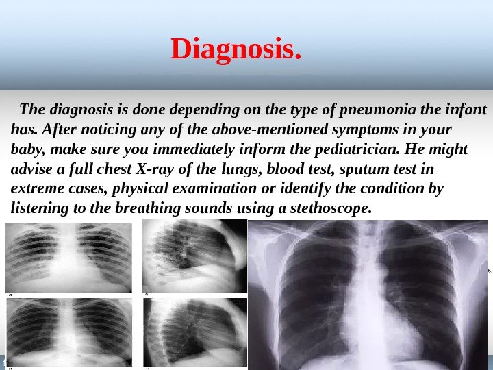 Diagnosis. The diagnosis is done depending on the type of pneumonia the infant has. After noticing