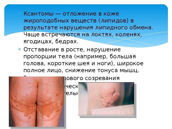 паразиты в коже лица человека