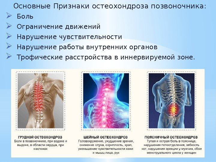 Остеохондроз мышц лечение