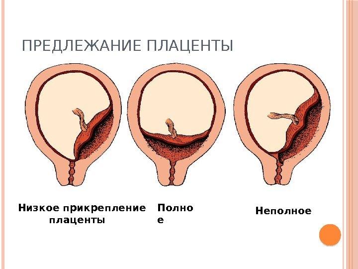 predlezhanie-platsenti-seks