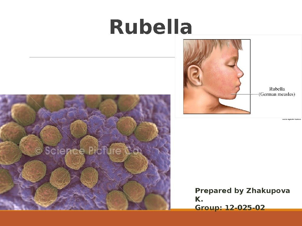 Rubella Prepared by Zhakupova K. Group: 12 -025 -02