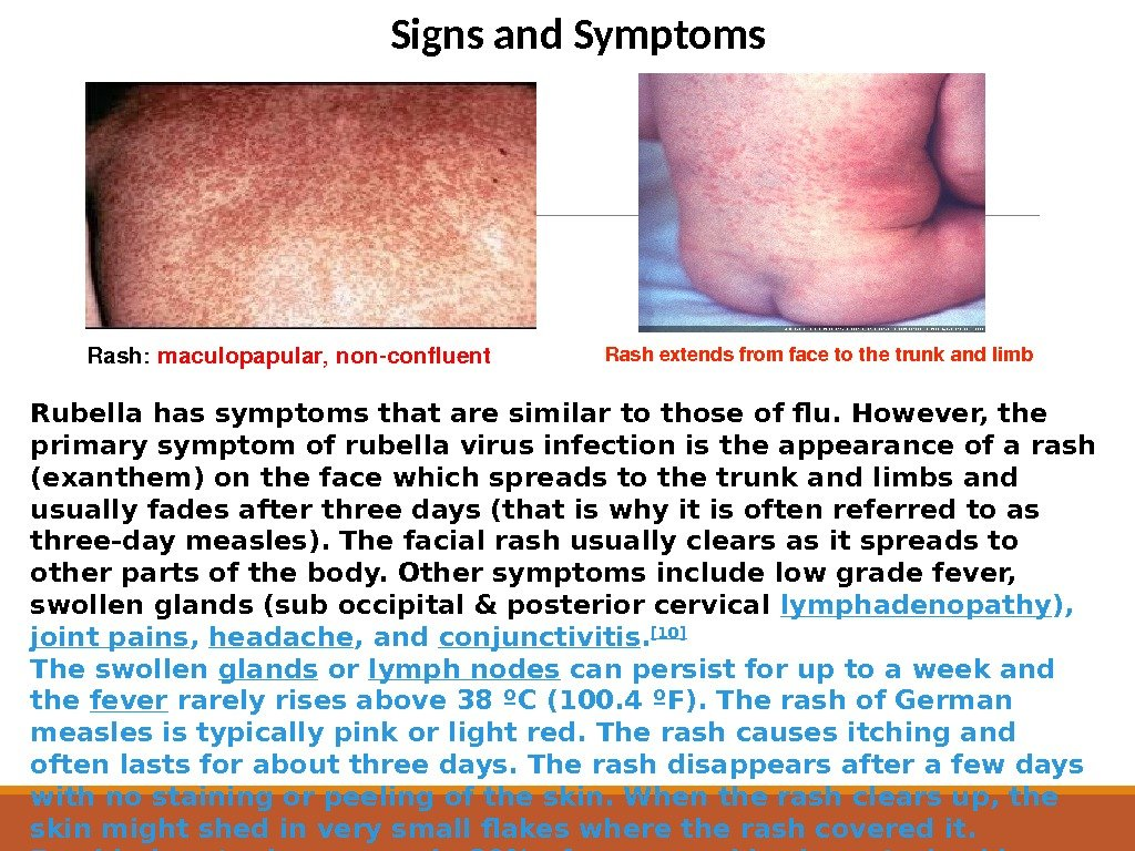 Rashextendsfromfacetothetrunkandlimb Rash: maculopapular, nonconfluent Signs and Symptoms Rubella has symptoms that are similar to those of