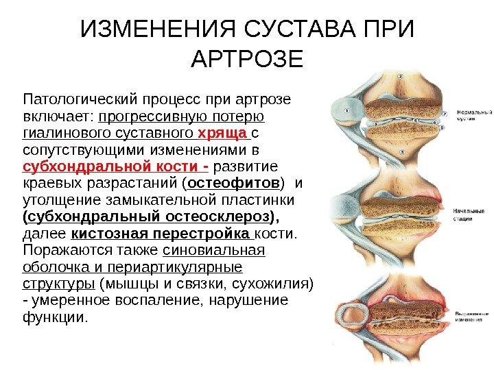 гиалиновый хрящ сустава