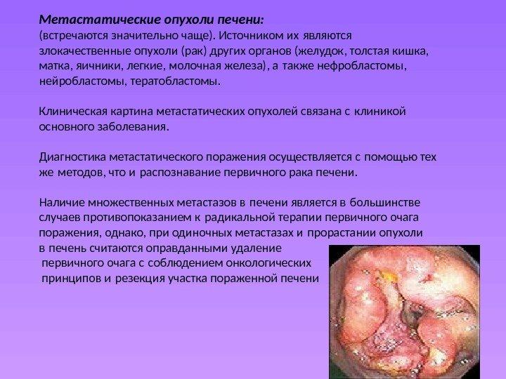 Чем опасны злокачественные опухоли