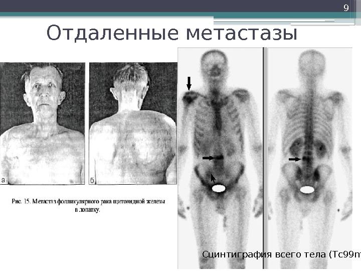 Метастазы рака щитовидной железы - пунктат лимфатического узла