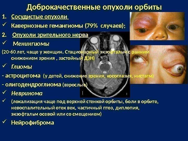 Мионгиома на глазном нерве