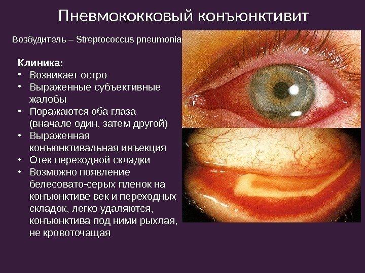 Острый бактериальный конъюнктивит