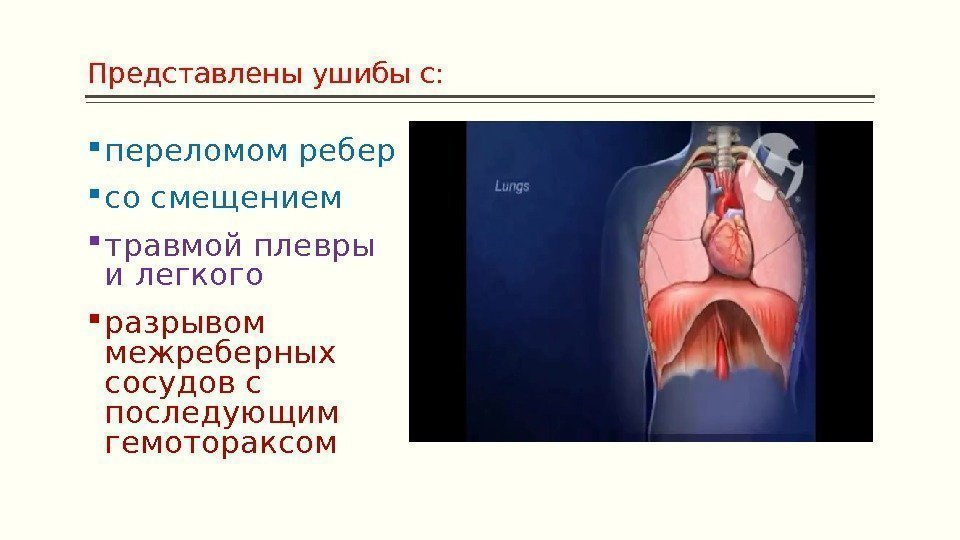 перелом ребер плеврит как лечить