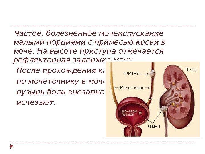 Levitra Blood Urine