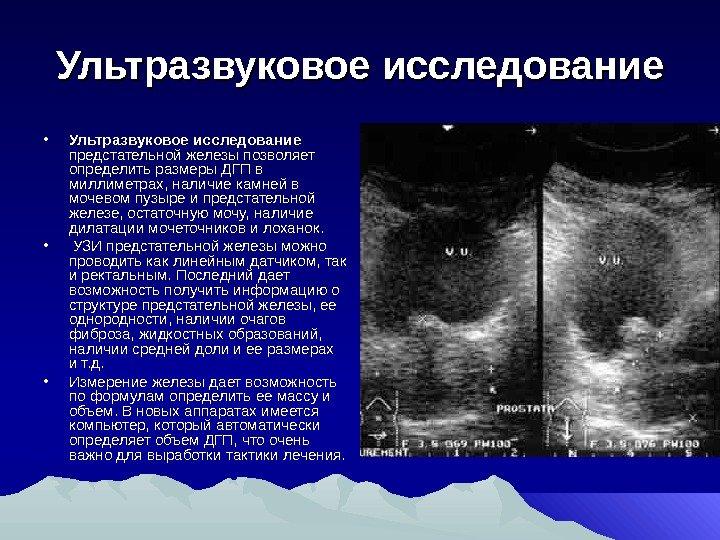 Что означает гиперплазия предстательной железы
