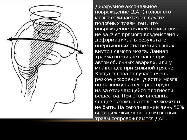 Диффузные ирритативные изменения головного мозга