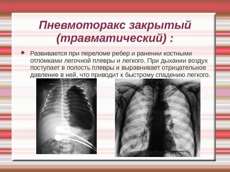 трещины в ребрах какой вред здоровью