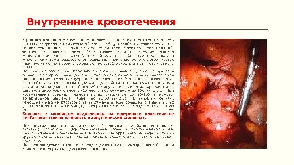 Дотсоветошм признаком легочного кровотечения служит