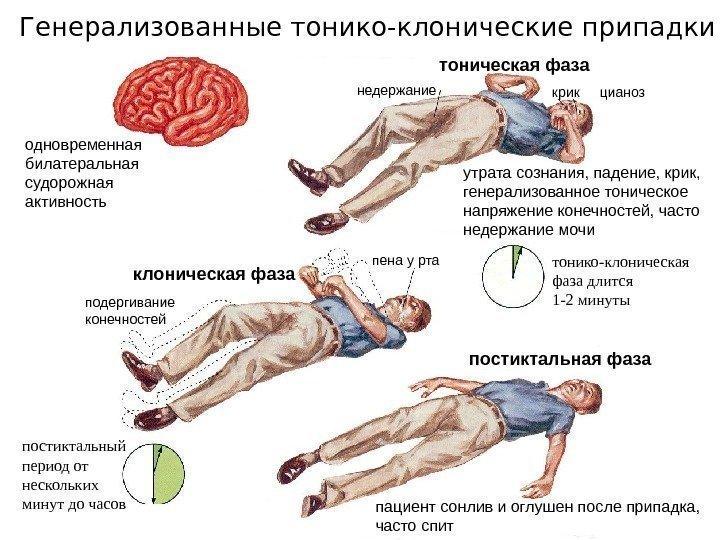 после судороги болит икроножная мышца что
