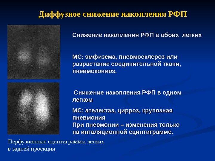 Диффузное сканирование