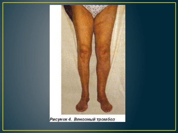 Отечный синдром суставов что такое гемортроз коленного сустава