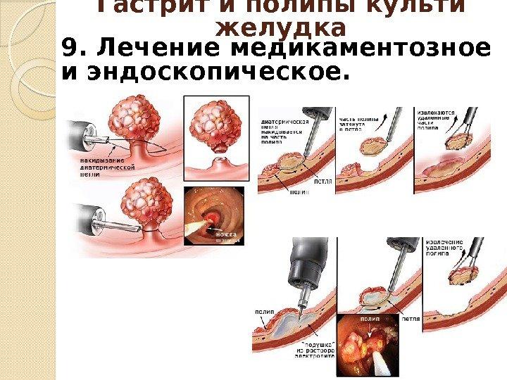 Болезни оперированного желудка Профессор Юрий Владимирович Плотников