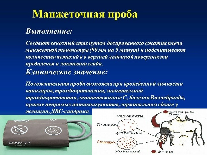 Клинико лабораторная диагностика гемостаза