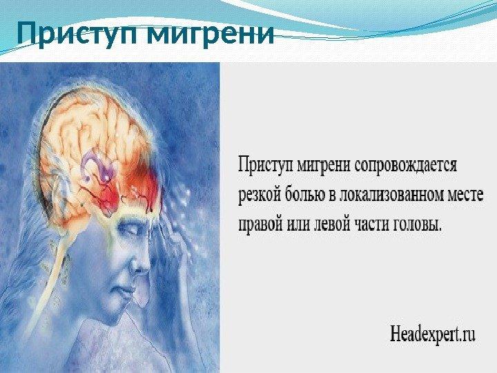 Особые виды боли мигрень