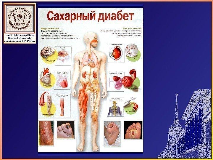 Сахарный диабет доклад и презентация