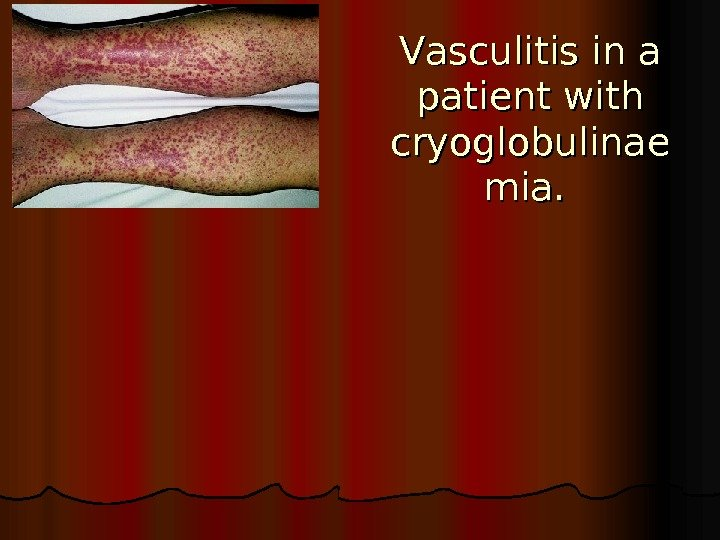 VV asculitis in a patient with cryoglobulinae mia.