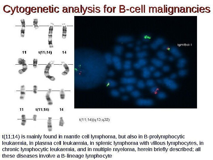 Cytogenetic analysis for B-cell malignancies t(11; 14) is mainly found in mantle cell lymphoma,