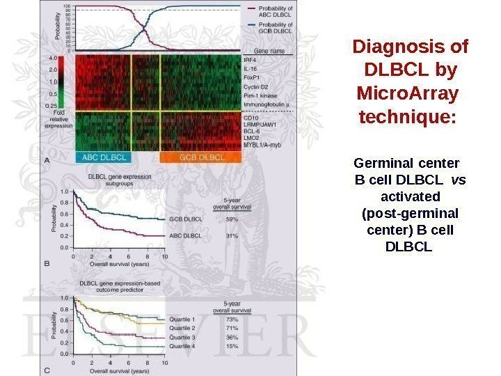 Diagnosis of DLBCL by Micro. Array  technique:  Germinal center  B cell
