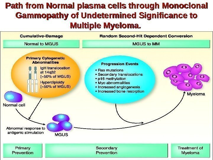 Path from Normal plasma cells through Monoclonal Gammopathy of Undetermined Significance to Multiple Myeloma.