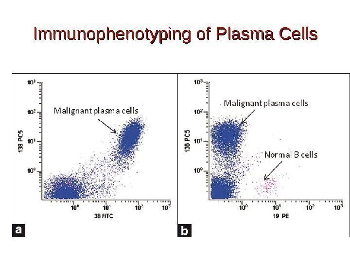 Immunophenotyping of Plasma Cells