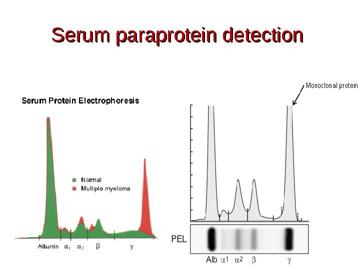 Serum paraprotein detection