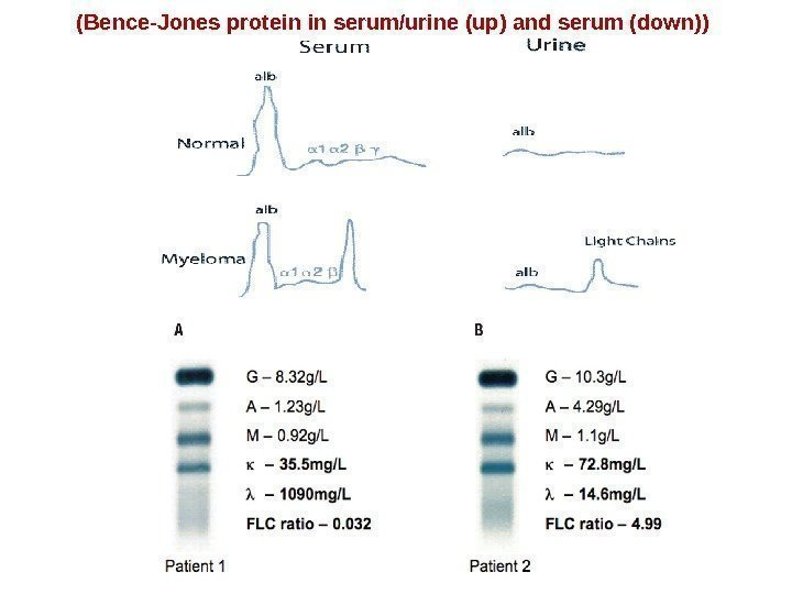 (Bence-Jones protein in serum/urine (up) and serum (down))