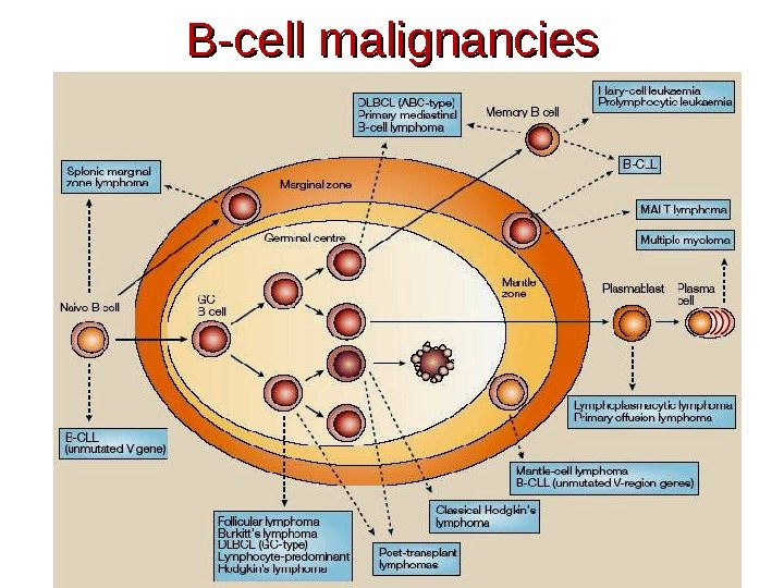 B-cell malignancies