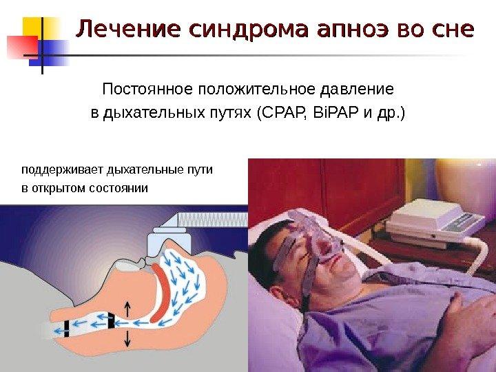 Заболевание апноэ