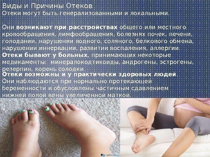 Как снять отек ног у беременных 13