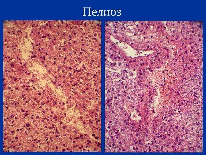 Доктор мясников жировой гепатоз печени